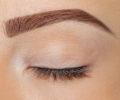 Bolton eyebrows